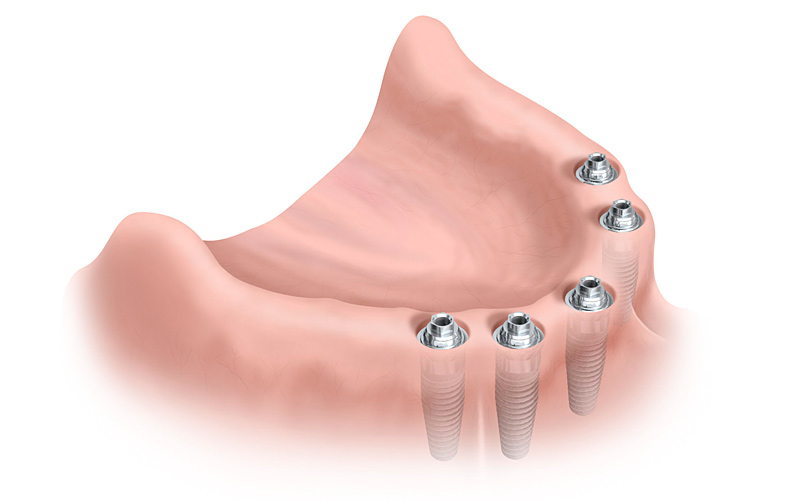 einbringen eines enossalen implants